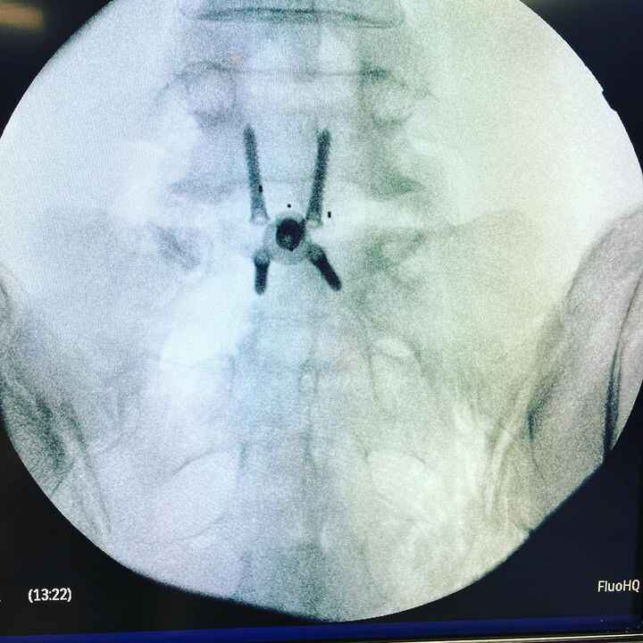 Photos from Spine Physicians Institute's post